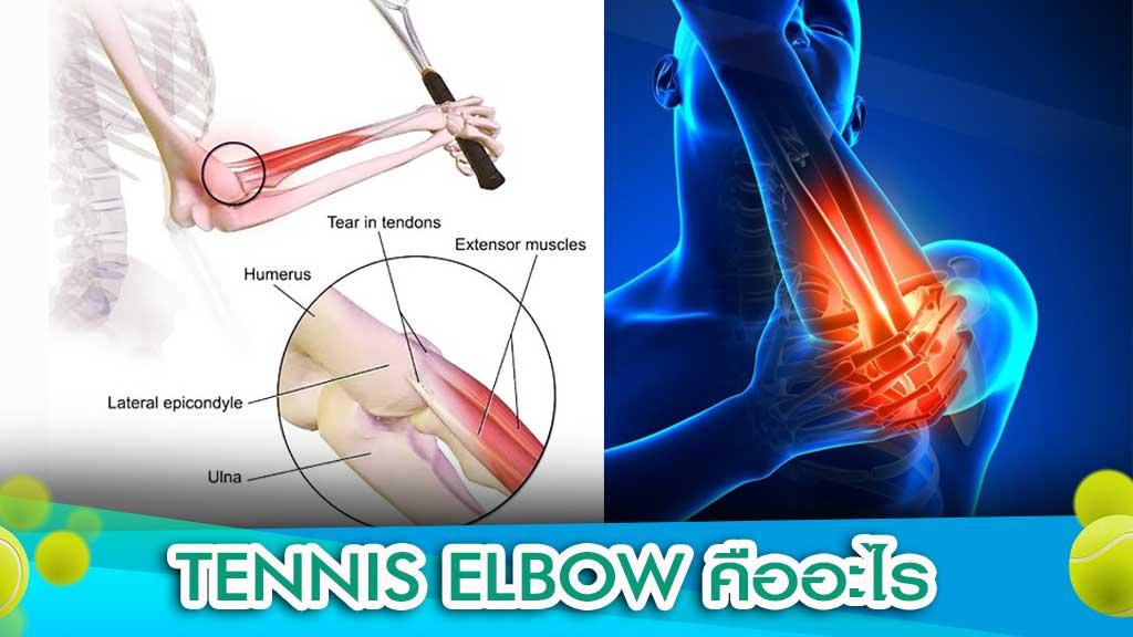 Tennis Elbow คือ